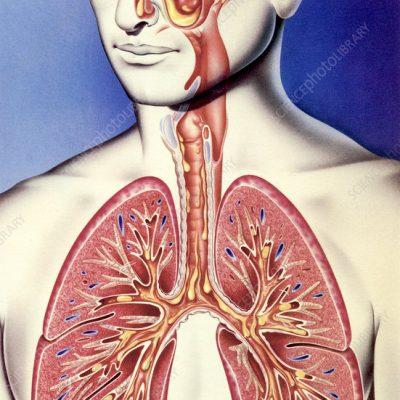 Upper and lower respiratory tract infections, illustration. In diseases such as pneumonia, a thick mucus blocks the lung airways and alveoli, reducing lung capacity. In severe cases, this can be fatal. The paranasal sinuses, ear, nose, throat, trachea and lung airways are sectioned here to show the mucus (yellow).